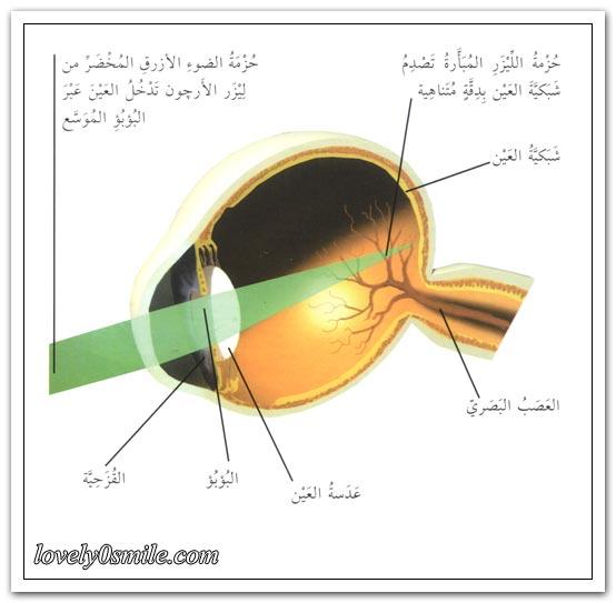 أول زراعة قلب + جرحة العين بالليزر - صور