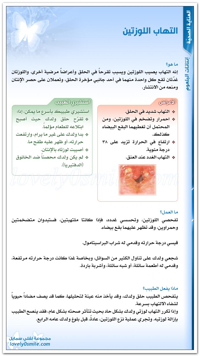 التهاب اللوزتين