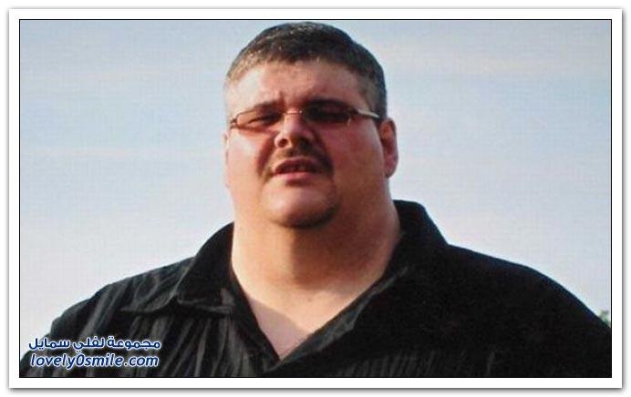 صور رجل بدين ينقص من وزنه 159 كلغم