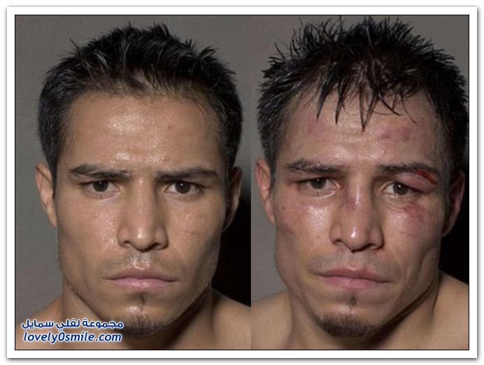 صور ملاكمين قبل وبعد الملاكمة