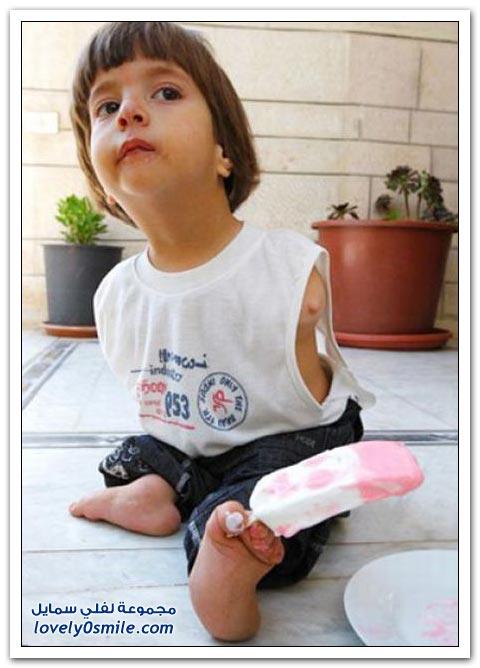 الولد الذي يستخدم رجليه بدل يديه