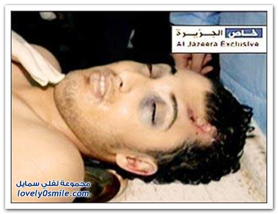 القذافي يحرق ليبيا وشعبها 042
