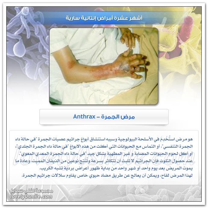أشهر عشرة أمراض إنتانية سارية