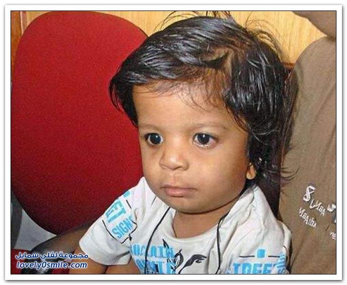 طفل هندي ولد بـ 34 إصبع
