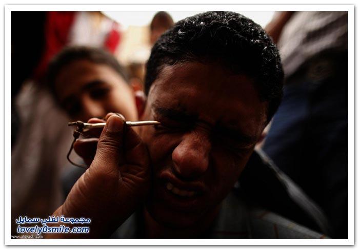 تكحيل العين في اليمن