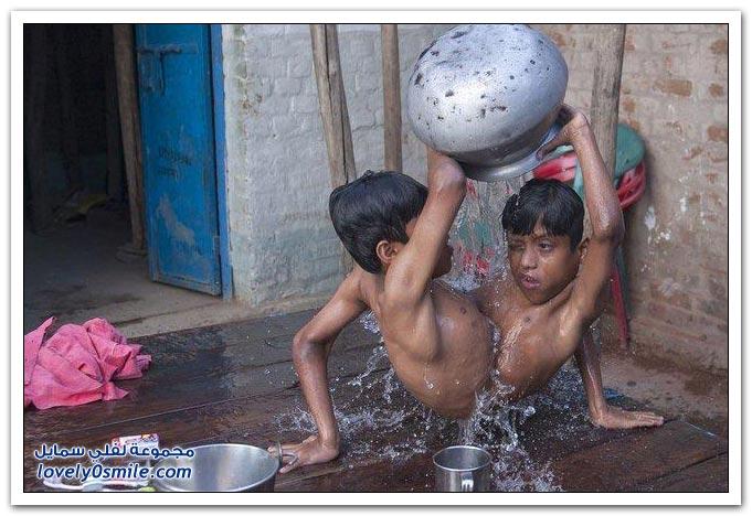توأمٌ سيامي في الهند اختارا العيش ملتصقين مدى العمر