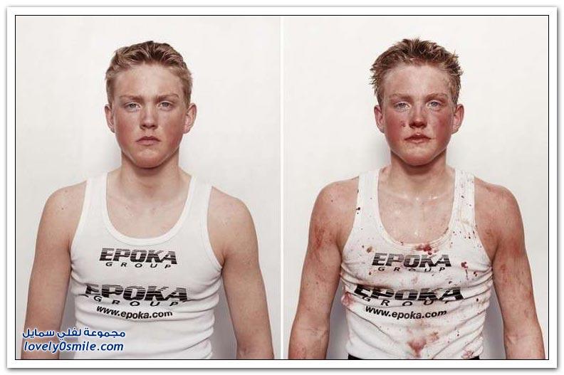 الملاكمين الشباب قبل وبعد المعركة