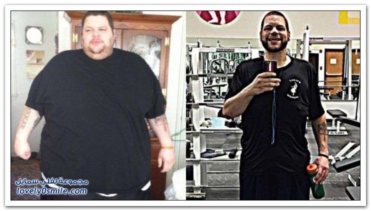 رَجُل يفقد من وزنه أكثر من 193 كيلوغراما