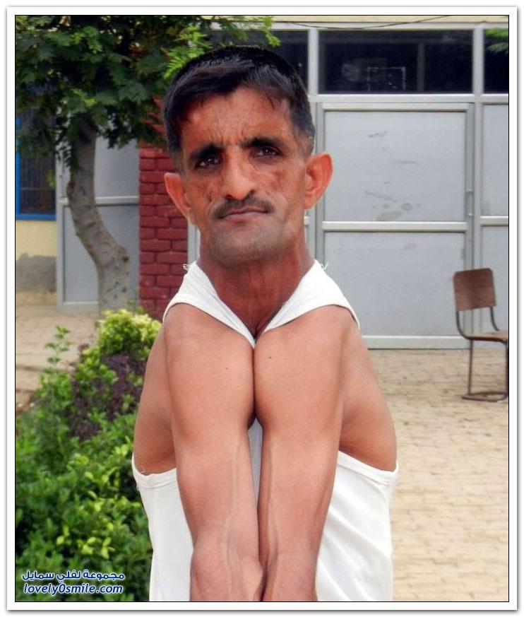 الرجل المطاط هندي يدخل غينيس بقدراته العجيبة