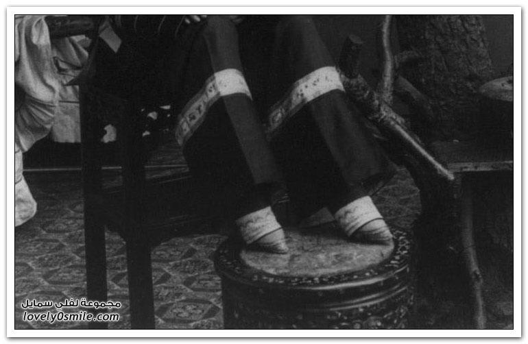 سر الأقدام الغريبة عند الصينيات