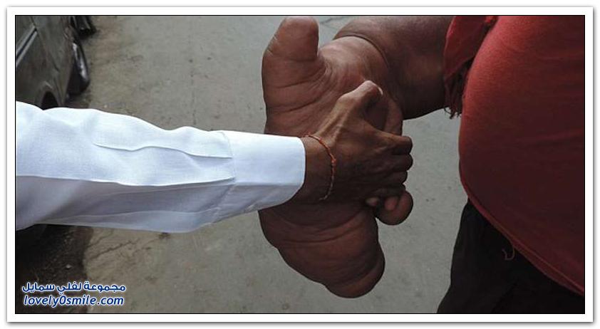 أضخم ذراع في العالم