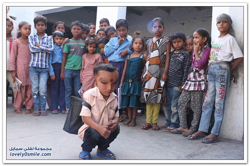 صبي هندي برأس متورّم يُعْبَد على أنه إله هندوسي