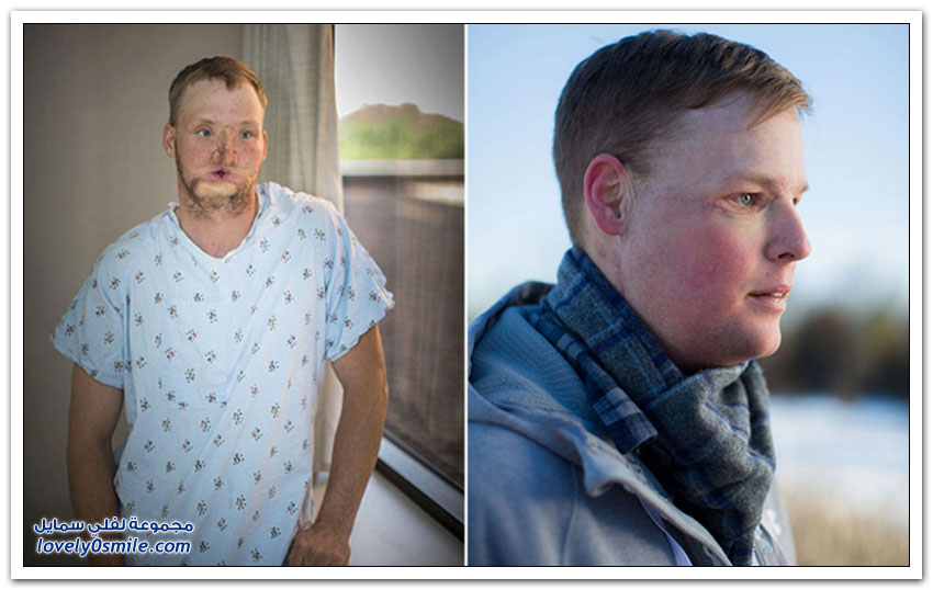 جراحة ناجحة لزرع وجه شاب في أمريكا بعد محاولة انتحار فاشلة