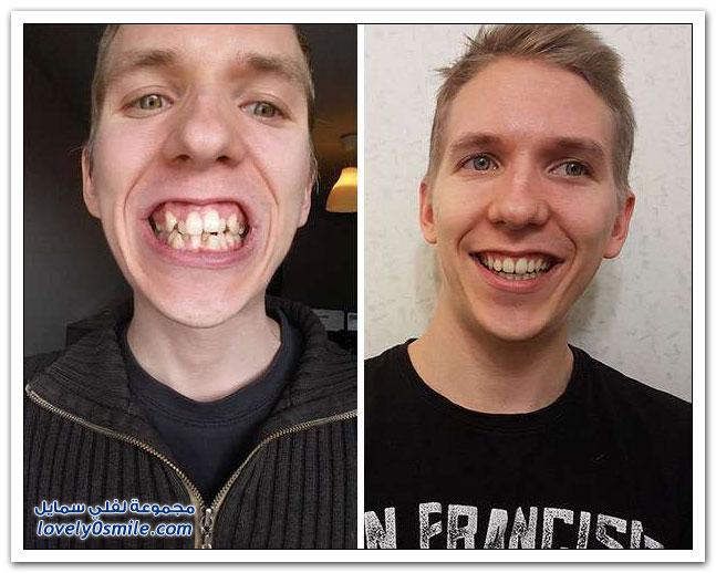 مشاهير قبل وبعد تعديل أسنانهم