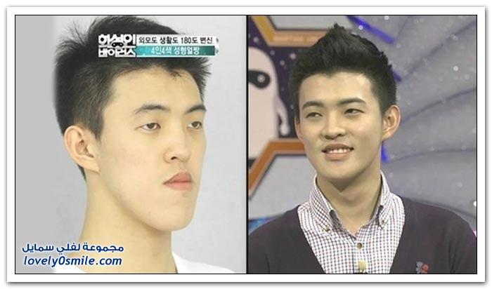 صور قبل وبعد عمليات التجميل في كوريا الجنوبية